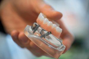 Tannløse har fått et nytt liv med All-on-4