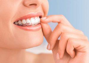 Tannregulering – Invisalign
