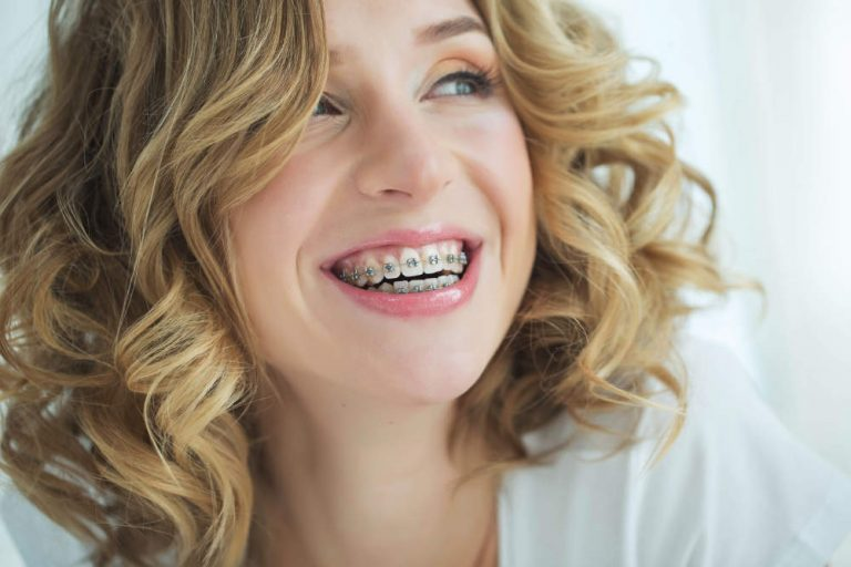 Tannregulering for voksne