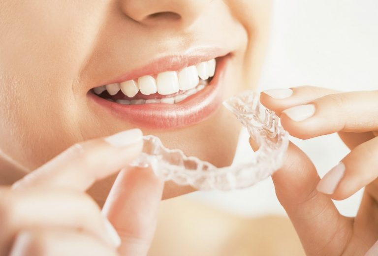 Invisalign - invisible braces