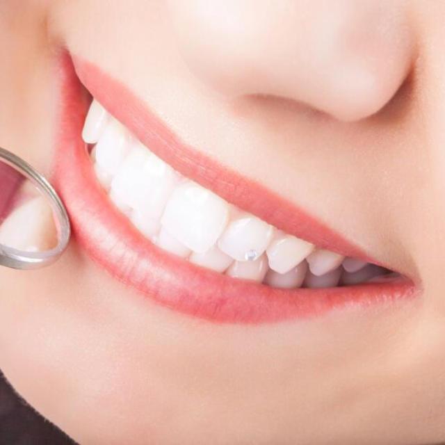 Kosmetisk tannbehandling - Rotfylling