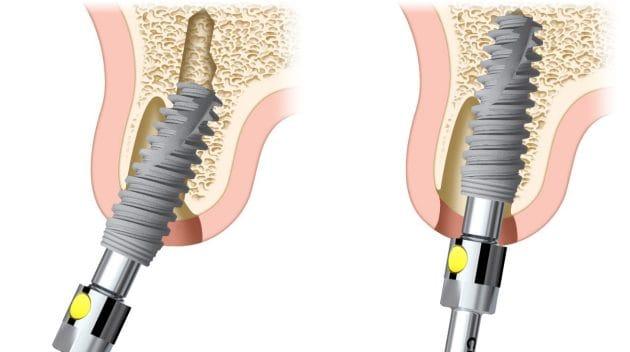 Implantatbehandlingen