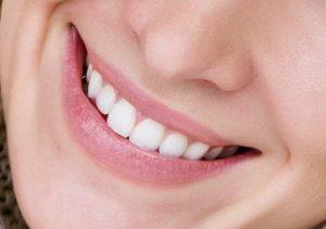 Kosmetisk tannbehandling