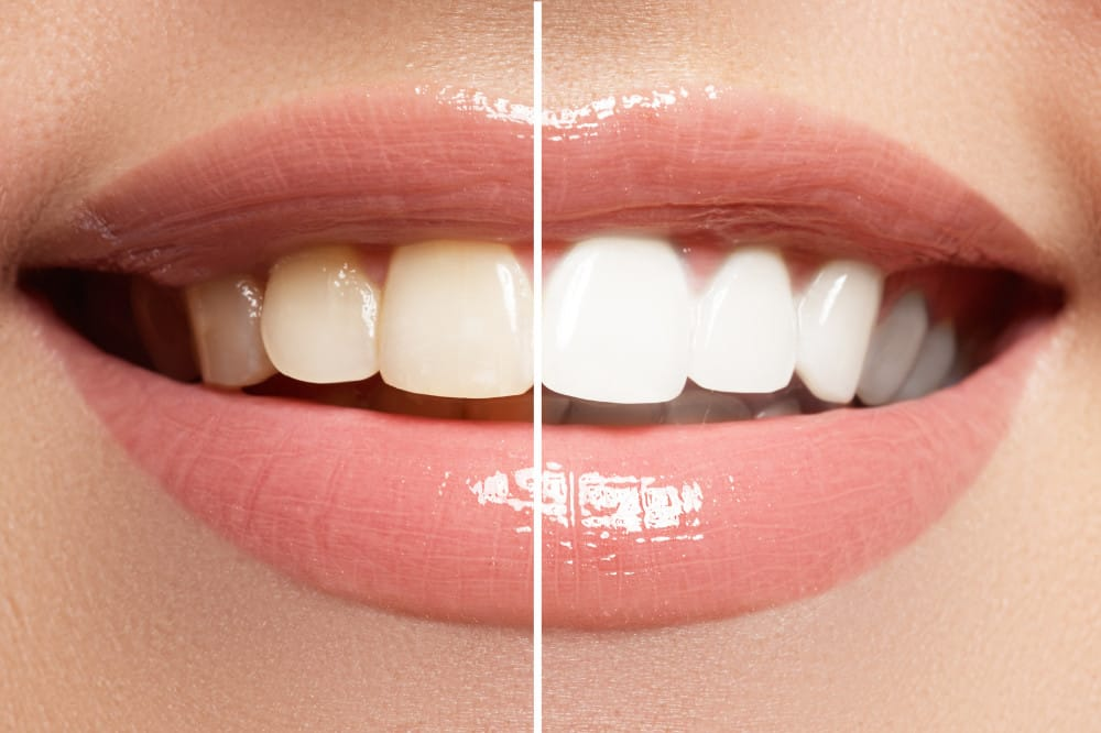 teeth whitening - before / after