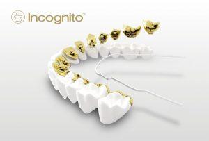 Incognito tannregulering
