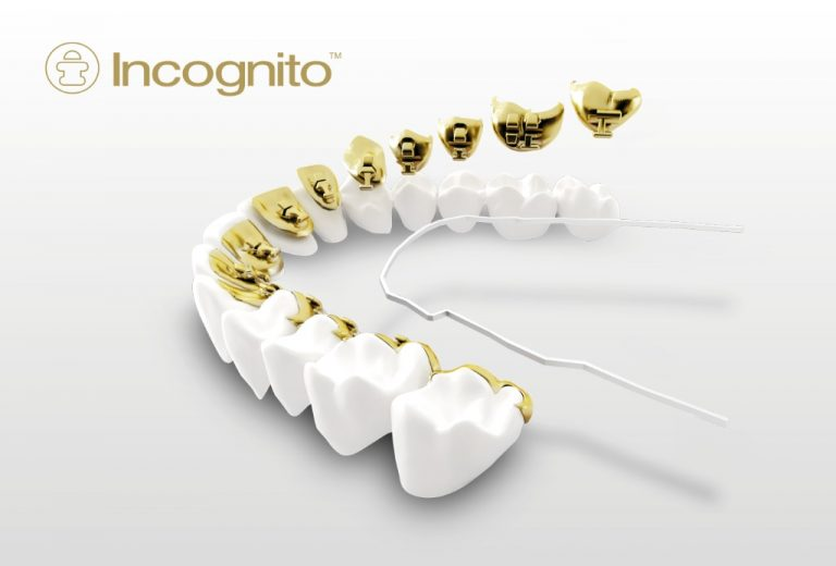 Usynlig braces